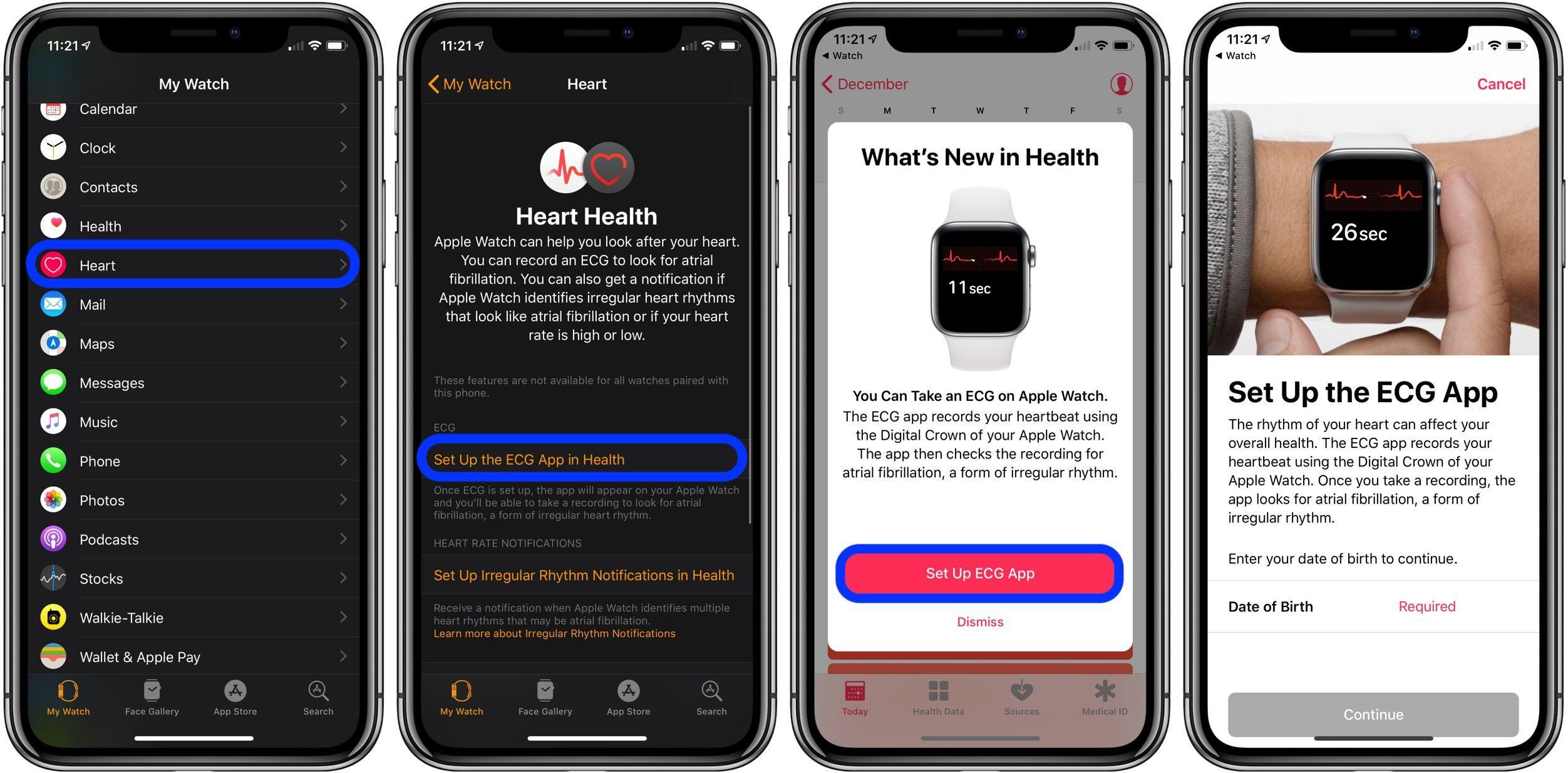 "<span href=""https://9to5mac.com/2018/12/06/take-ecg-ekg-electrocardiogram-apple-watch/"">Cómo tomar un ECG (electrocardiograma) en el Apple Watch [Galería]</a>"